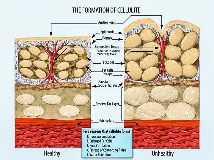 Reduction of Cellulite in Body SPA with Bio-Dermology